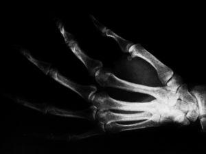 Röntgenaufnahme: gehört auch zum Datenmaterial (Foto: pixelio.de/Sabine Koriath)