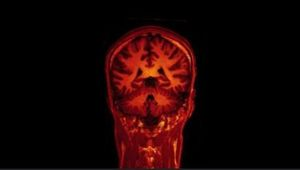 Blick ins Gehirn: KI wertet Scans aus (Foto: Flickr.com/Jon Olav Eikenes)