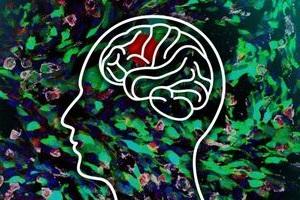 Gehirn im Fokus: Forscher finden neuen Krebs-Mechanismus (Foto: web.mit.edu)
