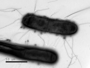 Bakterien, auf denen die viel kleineren Phagen sitzen (Bild: weizmann.ac.il)