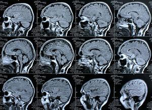 Gehirn-Scans: Neue Hypothese bei Parkinson aufgestellt (Foto: pixelio.de, Rike)