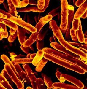 Tuberkelbazillen unter dem Elektronenmiksroskop (Foto: llnl.gov)