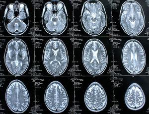 Gehirn-Scans: Einweiß blockiert Signalwege bei Parkinson (Foto: pixelio.de/rike)