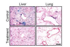 Alternde Zellen (blau) vor und nach der Behandlung (Foto: weizmann.ac.il)