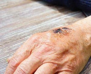 Hautverletzung: Bakterien begünstigen Heilung (Foto: pixabay.com, Hans)