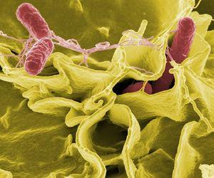 Salmonellen: Hintertür durch Pflanzen (Foto: pixabay.com, skeeze)